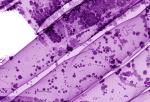 Figure showing overlap of LiDAR scanlines
